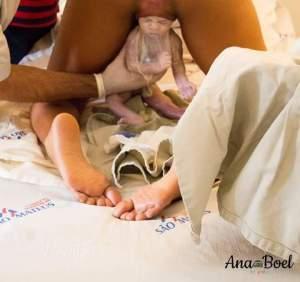 לידת עכוז 3