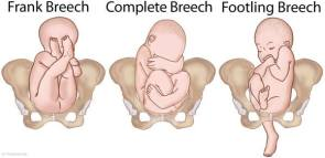 types of breech